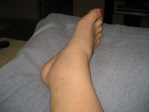 Swollen Ankle 2 Weeks AFTER the Endovenous Laser Treatment (EVLT)